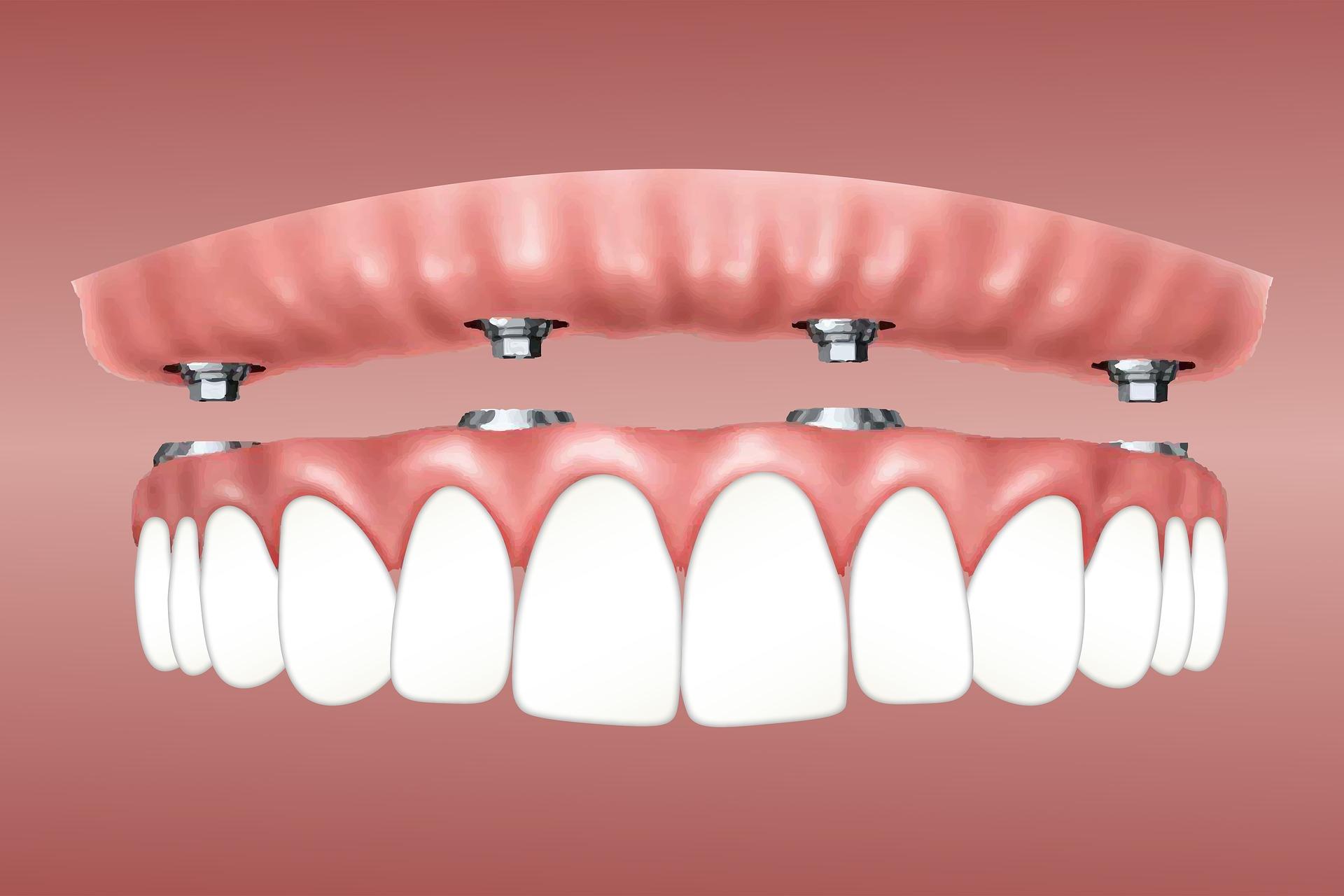 Benefits of Dental Implants, Dental Blush.
