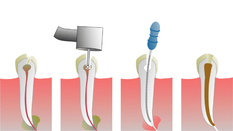 Root Canal Treatment, What is It and What Are its Benefits